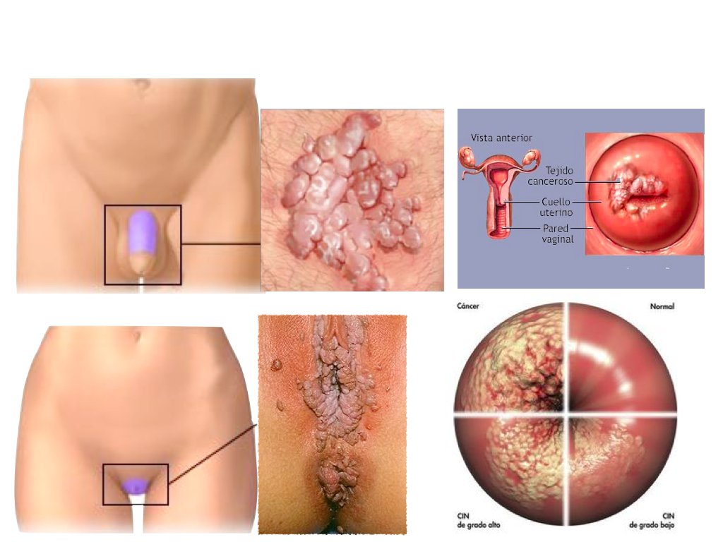 how to clear hpv virus