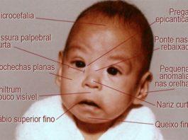 Sindroma de alcoolismo fetal