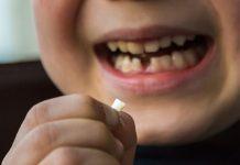 Alteração da cor dos dentes
