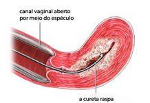 Raspagem uterina